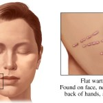 Face warts natural remedy