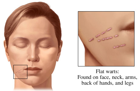 Flat-Warts natural remedies