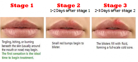 cold-sore-stages - natural remedies