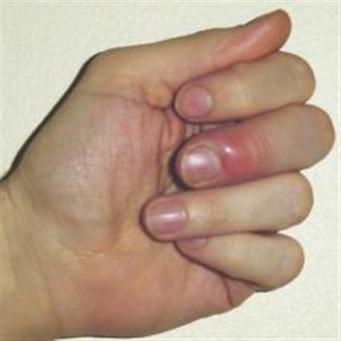 Finger Whitlow (Small)