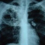 A cheap treatment for pulmonary tuberculosis