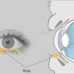 The best treatment for eye stye