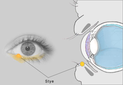 natural remedies for stye
