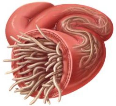 Intestinal-parasites-