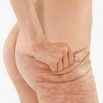 A cheap natural remedy for cellulite