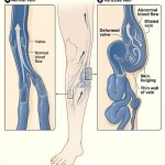 Varicose Veins – 8 Most Effective Home Remedies