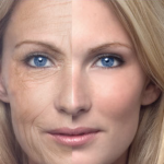 Wrinkles – Prevent Your Skin Aging