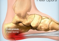 heel_spur remedy