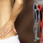 Sciatica – how to get rid of pain