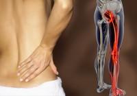 sciatica natural remedies