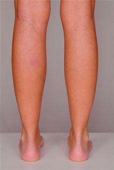 Useful Treatment Tips For Varicose Veins