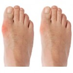 Fingernail and toenail infection treatment (whitlow